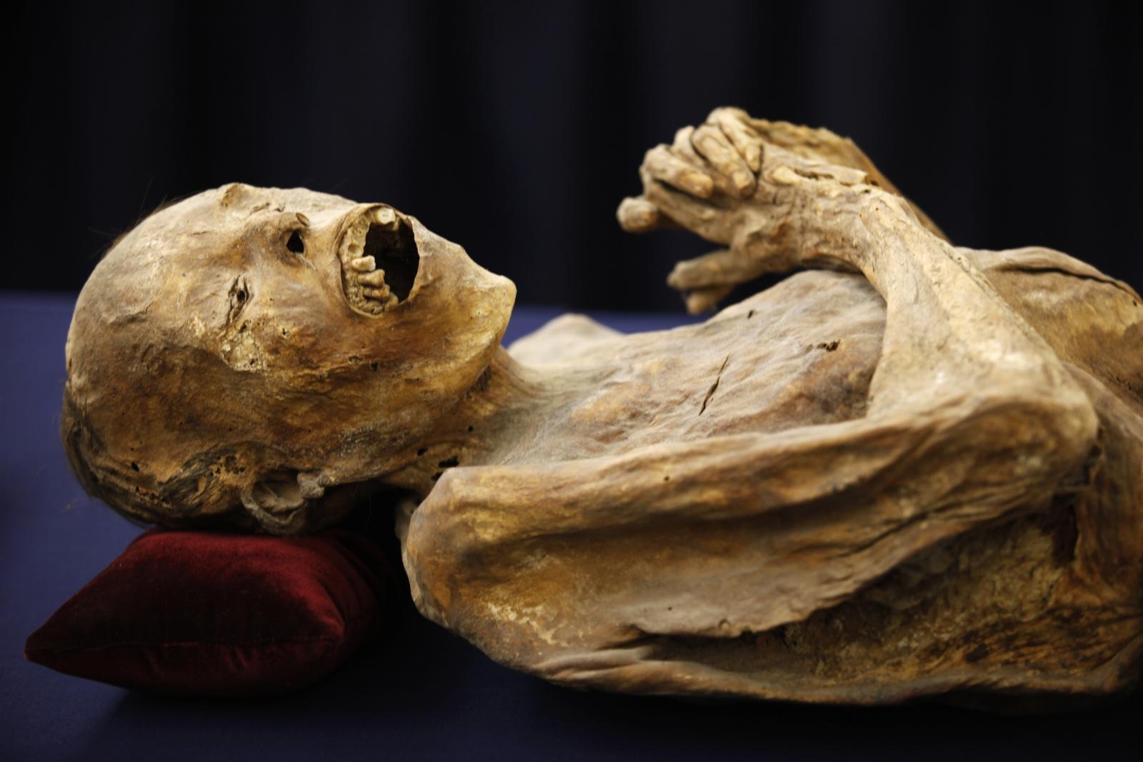 Mummified body