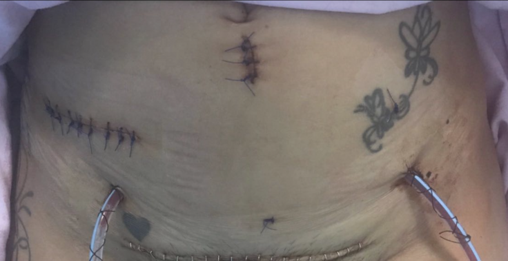 Carla Cressy's surgery wounds