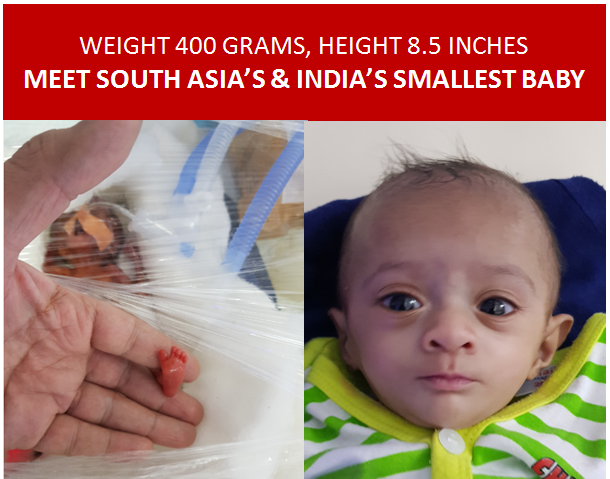 Miracle baby india