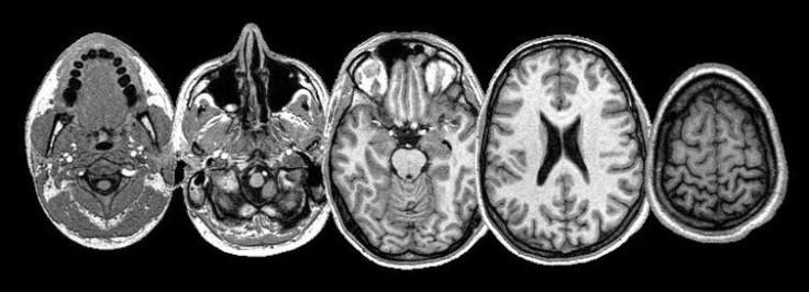 Skull MRI