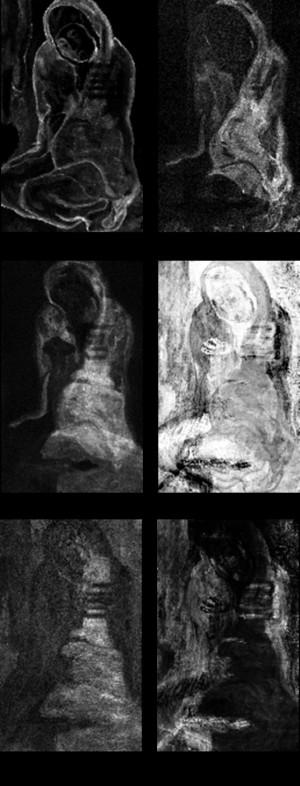 La miseruese accroupie x-rays