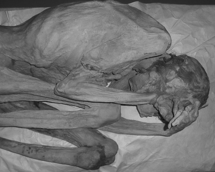 Gebelein female mummy