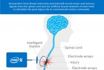 Intel AI spinal cord tech