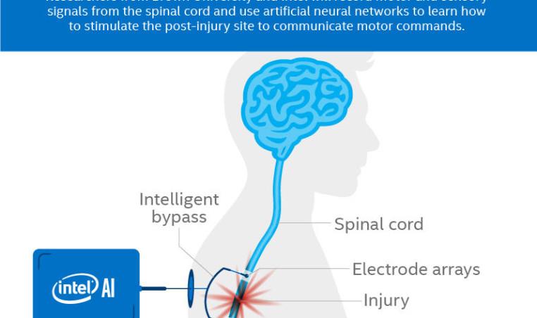 Intel AI spinal cord tech