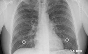 Lung Transplant Coronavirus