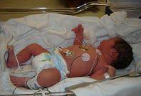 NHS Maternity
