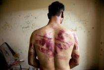 Syrian man tortured