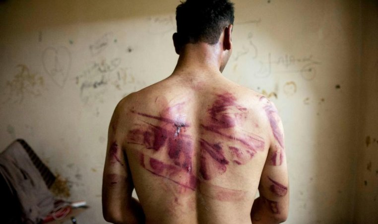 Syrian man tortured