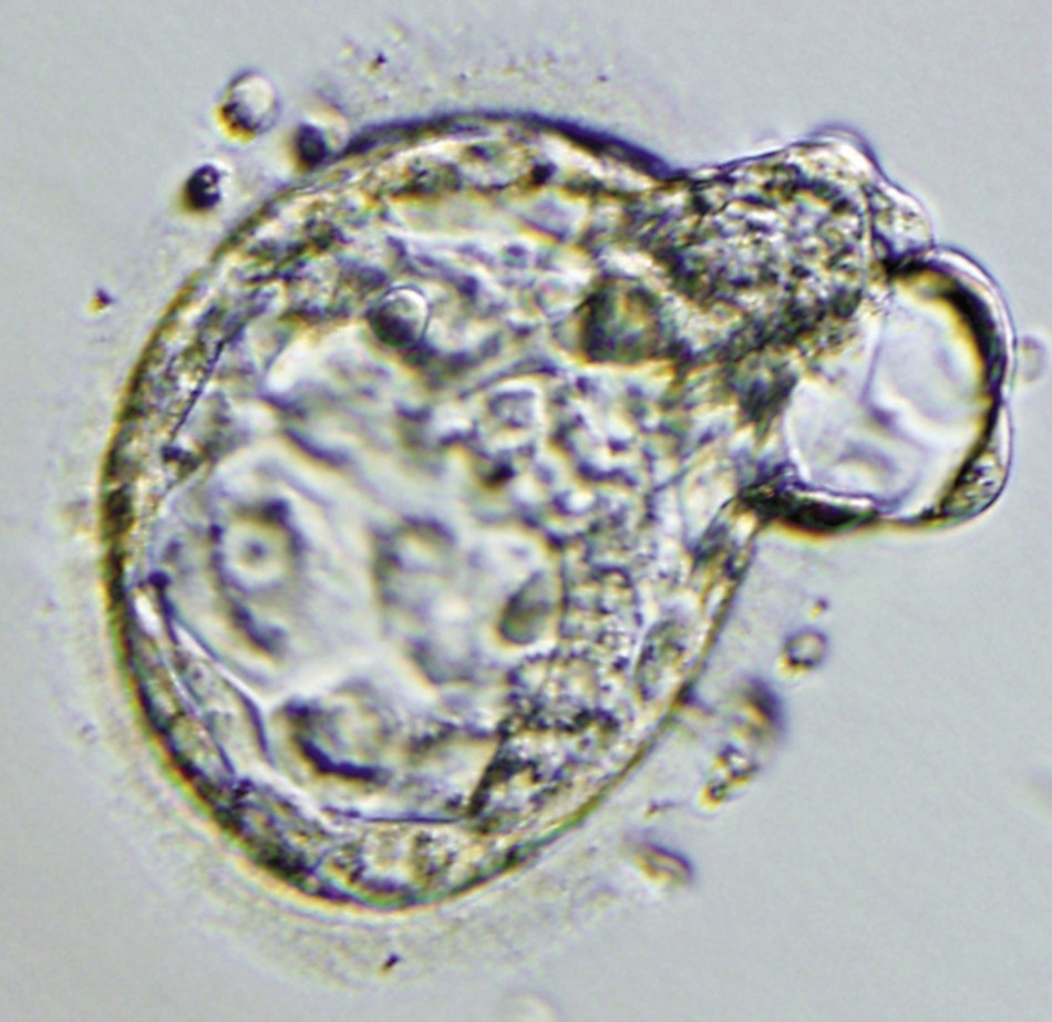 Fertility Treatment Linked With Major Birth Defects