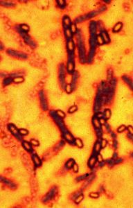 A microscopic picture of spores and vegetative cells of Bacillus anthracis which causes the disease anthrax is pictured in this undated file photograph.