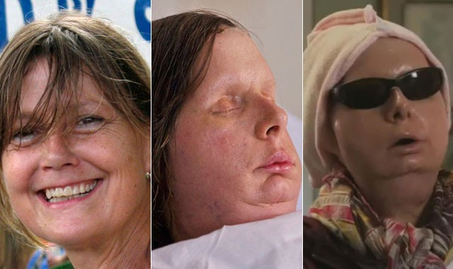 Charla Nash before, during and after her surgery.