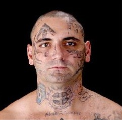 Reformed White Supremacist Has 25 Procedures To Remove Racist Tattoos