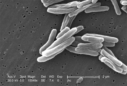 Tuberculosis Reaches Lowest Levels Since 1953 In U.S.