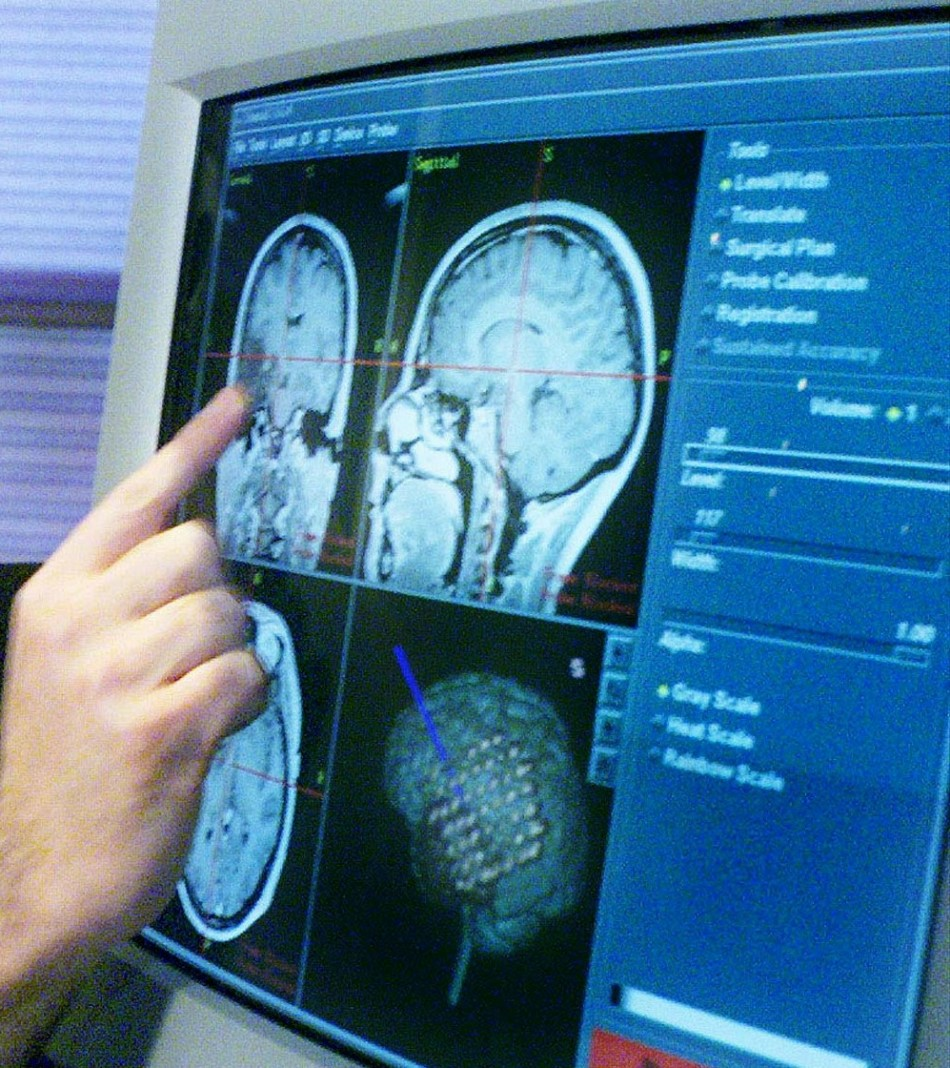 Scientists Creates Mind-Reading Machine That Reconstructs Words from Brain Activity