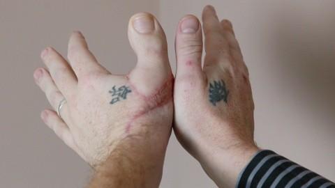 James Byrnes Thumbs