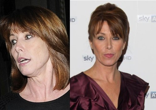 8 Celebrity Facelifts Gone Wrong Before and After