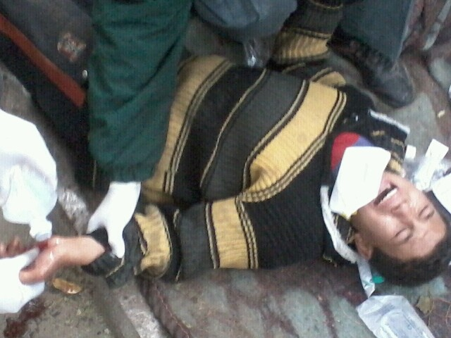 An OccupyCabinet protester being treated after being injured