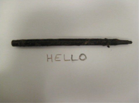 The surgeon even went as far to write a message for his patient using the pen he had just removed from her.