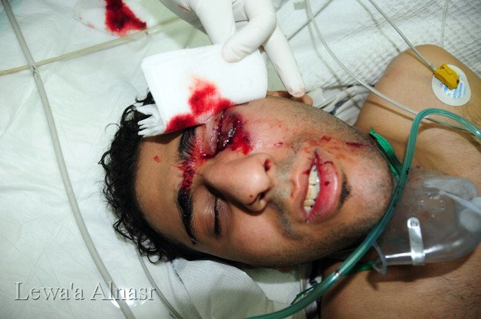 Bahraini protester bleeding from his eye after being injured by riot police, the Barhain Centre for Human Rights says