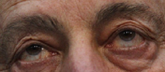 Scientists Use Stem Cells to Cure Blindness