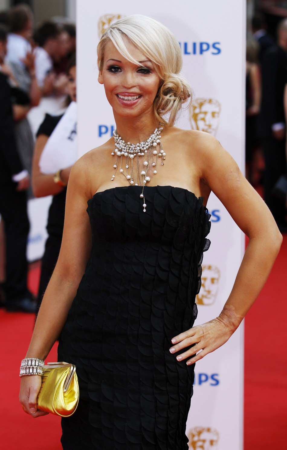 Quot The Girl Who Was Saved Quot Katie Piper Gets Sight Back