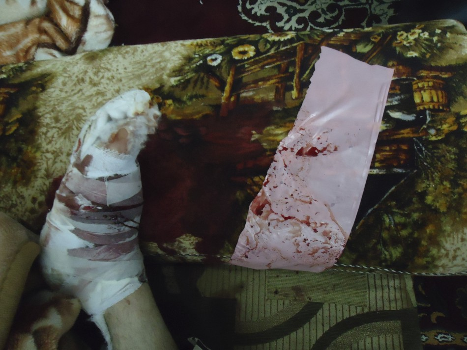 The bandaged foot of a girl, wounded February 5, 2012, is seen as she sits next to her relatives in Baba Amro, a neighbourhood of Homs