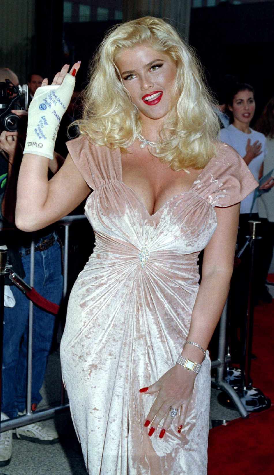 Guess clothing model Anna Nicole Smith poses for photographers with her right hand in a cast as she ..