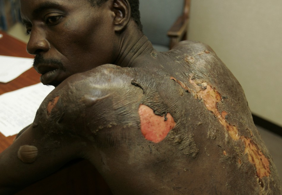 An opposition Movement for Democratic Change (MDC) supporter shows how he was beaten by Zimbabwe army soldiers in the capital Harare