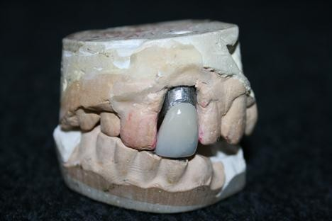 Elvis Presley's dentist kept a spare dental mould in case the singer chipped or cracked his front crown.