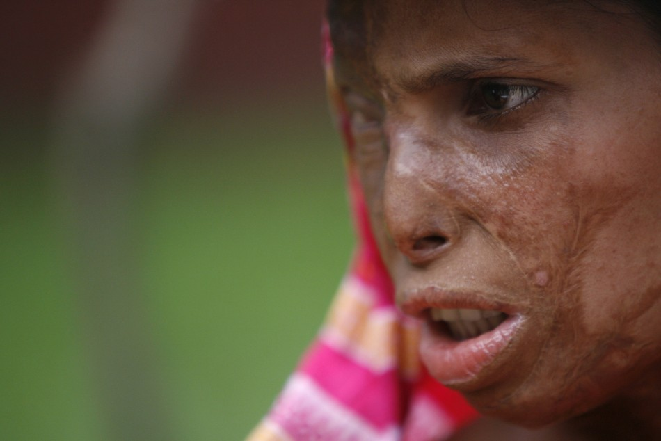 Acid attack victim