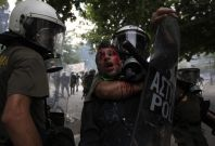 A Greece protester bloodied by violent confrontation with the riot police