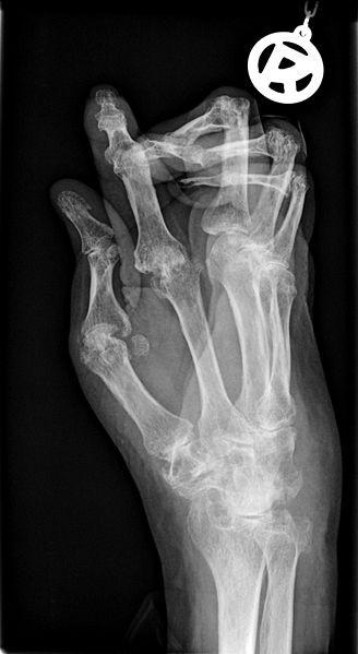 Arthritis Hands X-Ray