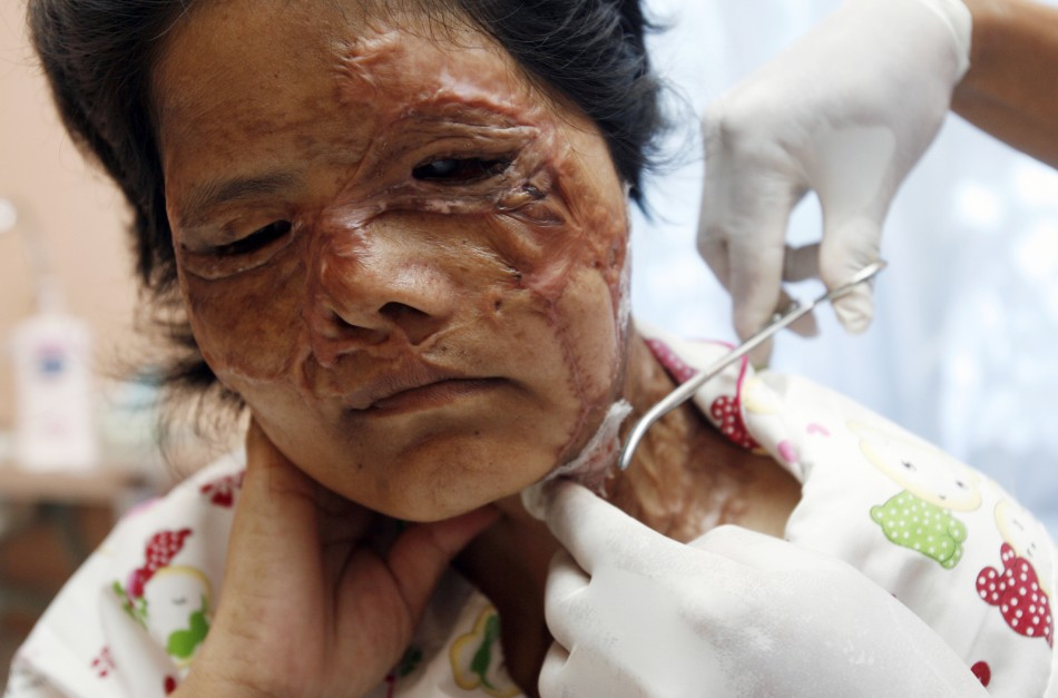 A victim of an acid attack receives treatment at the Cambodia Acid Survivors Charity in Kandal province, west of Phnom Penh
