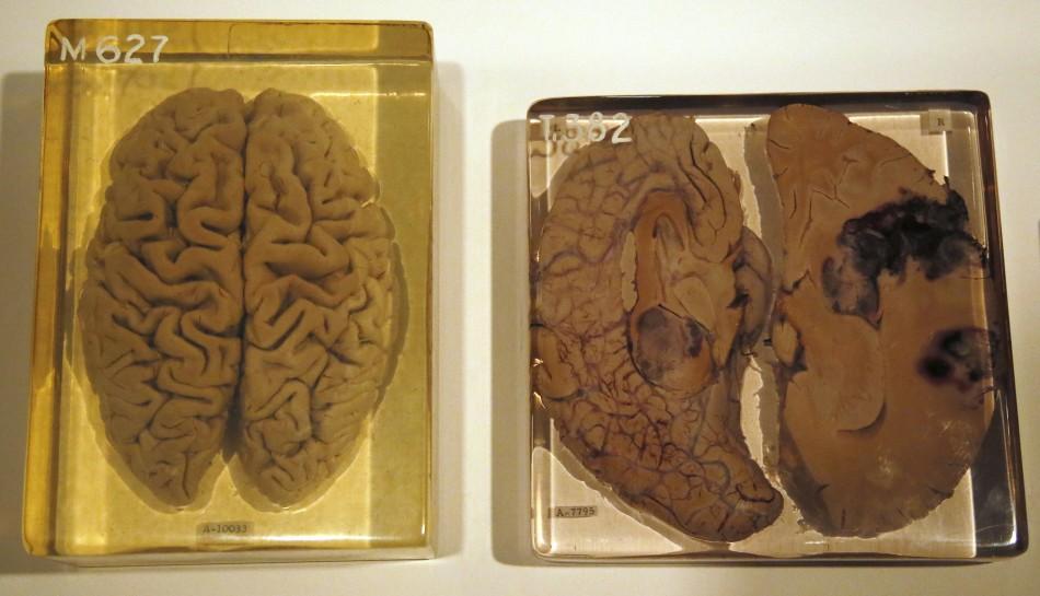 The Minds As Matter