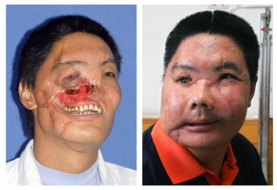 A combination photograph shows a man before and after his operation