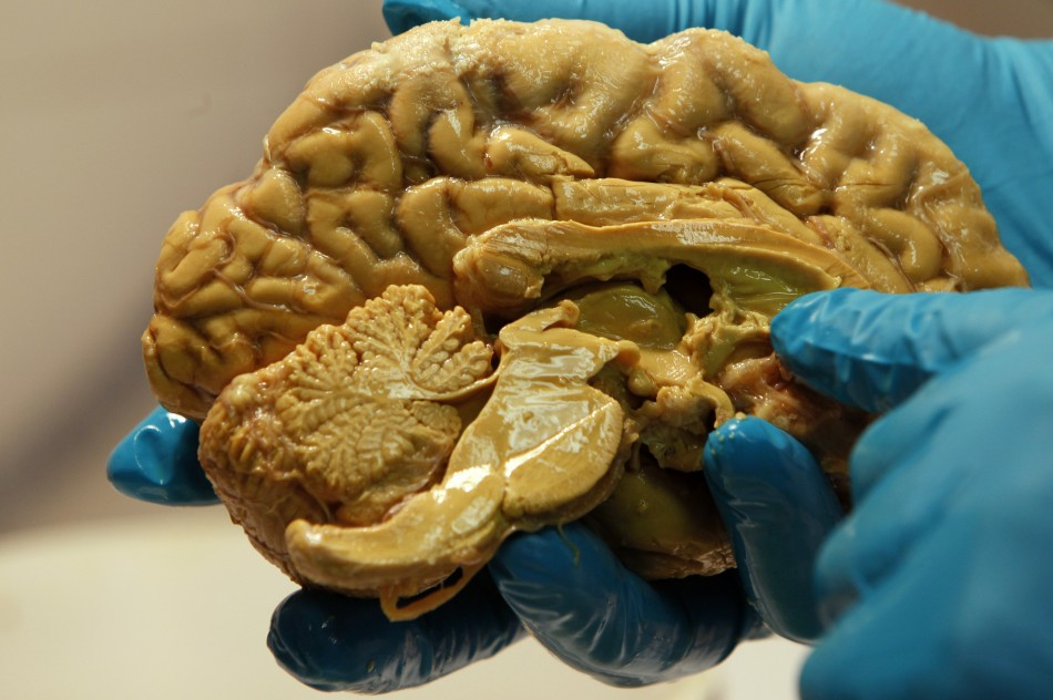 New Report Suggests Big Impact of Brain Size on Human's Brain Prowess and Deterioration