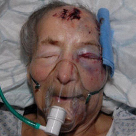 Emma Winnall, 94, was seriously injured in the attack at her home in Birmingham (West Midlands Police)