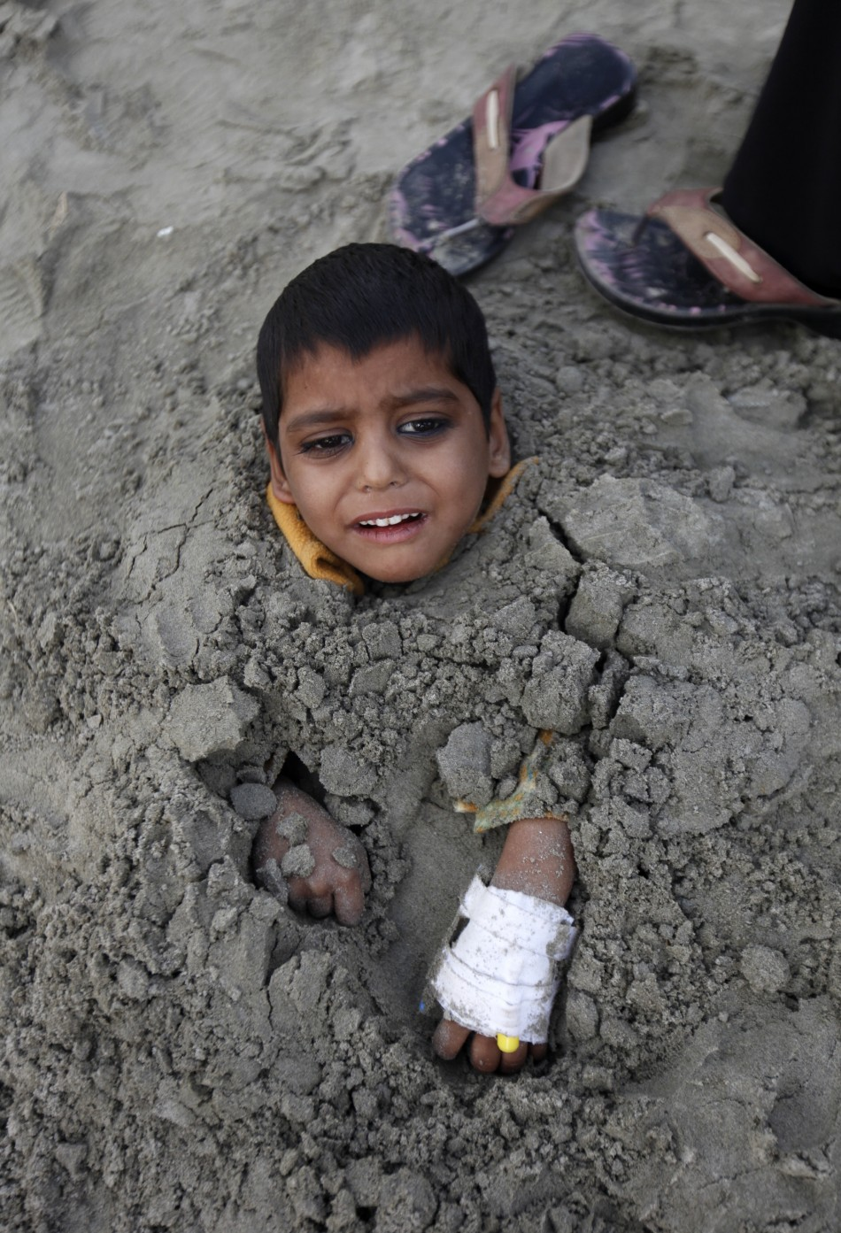 Yasir, a seven-year-old handicapped boy, lies buried in sand up to his neck during a partial solar eclipse at Karachis Clifton beach