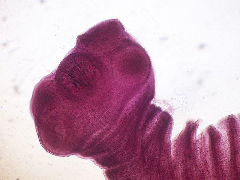 Brain Tapeworm