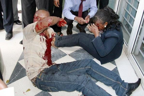 Bloodied victims of the Nairobi shopping centre blast