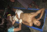 Injured Man At Burma's Sittwe General Hospital