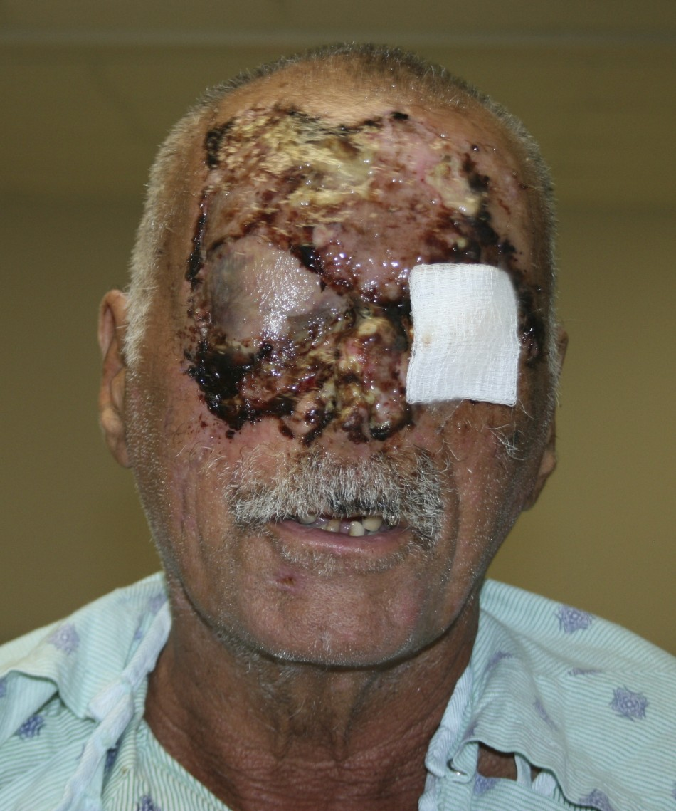 Jackson Memorial Hospital have released the first picture of Ronald Poppo recovering in hospital. (Reuters)