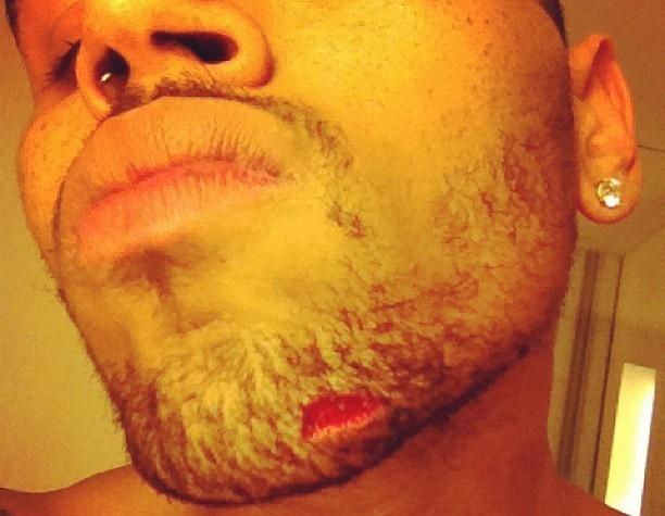 Chris Brown Hurt