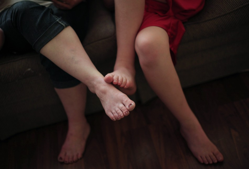 Gout causes in and around joints, particularly the big toe (Reuters)
