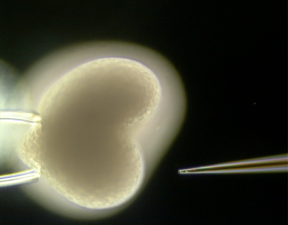 A gene sequence is injected into an embryo of Hydra.