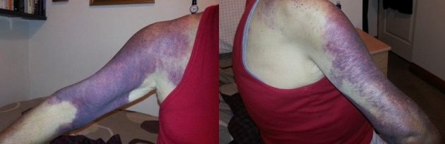 The 69-year-old is still in hospital following the attack more than two weeks ago (GMP)