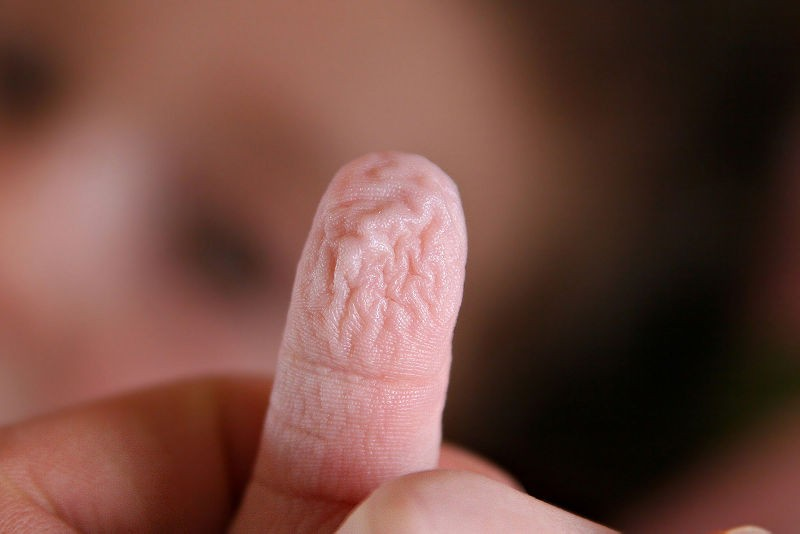 wrinkly finger