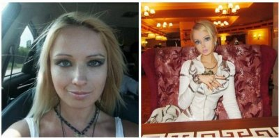 Valeria Lukyanova before and after surgery