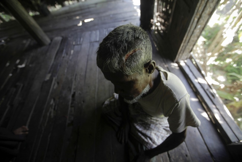 Muhammad Amin, 62, a Muslim man who was beaten with a metal pipe until his skull cracked, sits in his home in Paik Thay, the site of recent violence between Muslim Rohingyas and Buddhist Rakhine people,