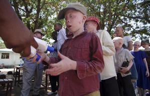 Albino attacks